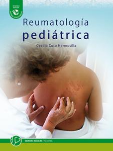 Reumatología pediátrica. Segunda edición